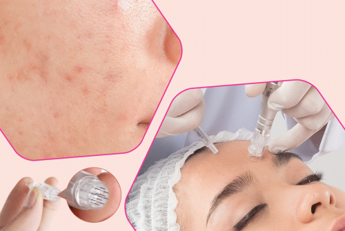 Combat Acne with Fractional Needling Therapy