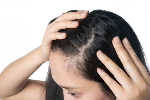 Flawless Solutions for Common Hair Woes