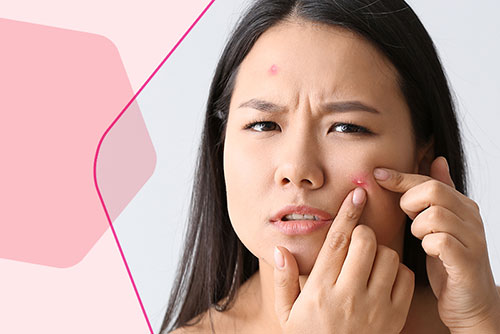 Got Acne? Get Answers from Flawless Experts